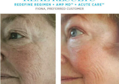 redefine real results fiona
