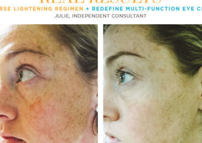 redefine real results julie