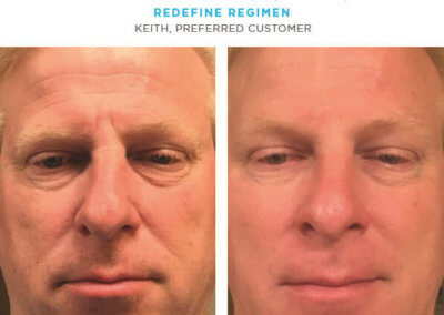redefine real results men
