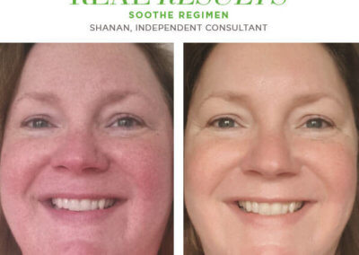 redefine real results shanan