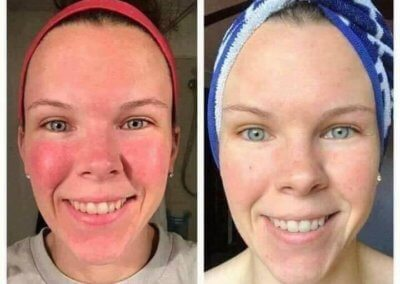 soothe before after 1